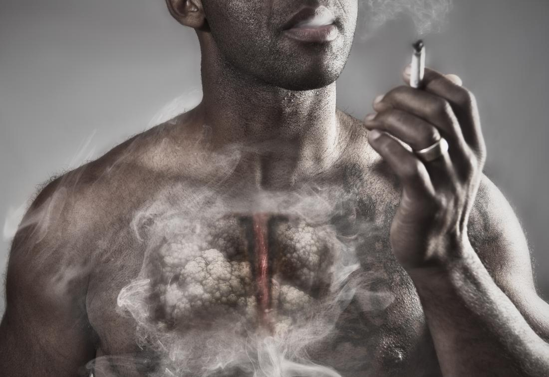 Emphysema: Symptoms, treatment, and causes