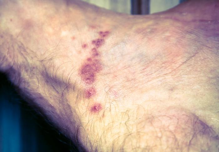 Scabies Images Symptoms And Treatments