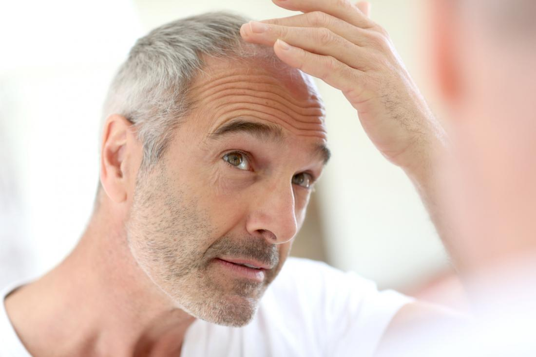 Male pattern baldness: Causes and treatment