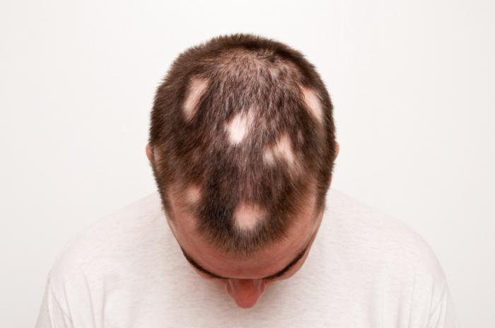 Alopecia areata: Causes, symptoms, and treatment