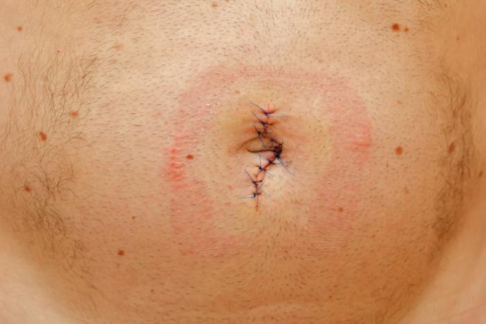 dolor en la ingle 3 meses después de la cirugía de hernia