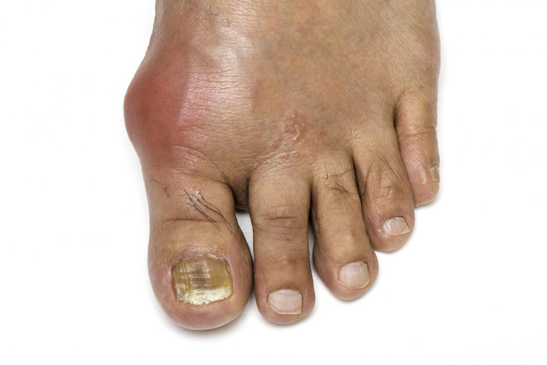 gout on foot