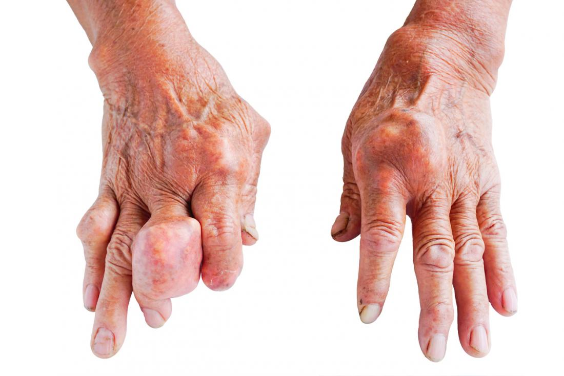 gout on hands