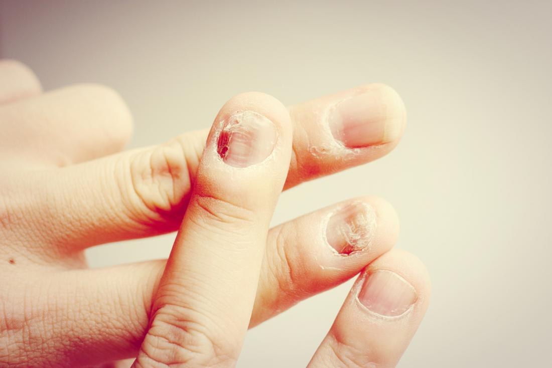 Nail fungal infection: Causes, treatment, and symptoms