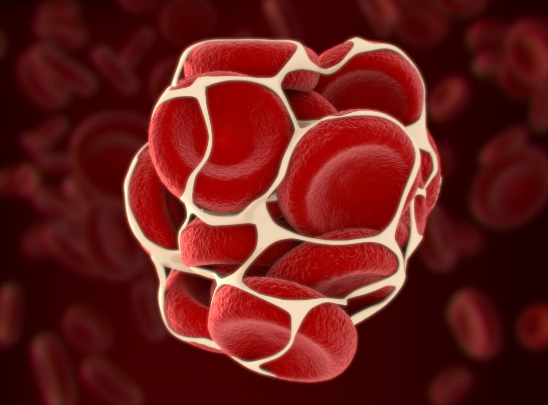 Deep vein thrombosis and pulmonary embolism: Symptoms and more