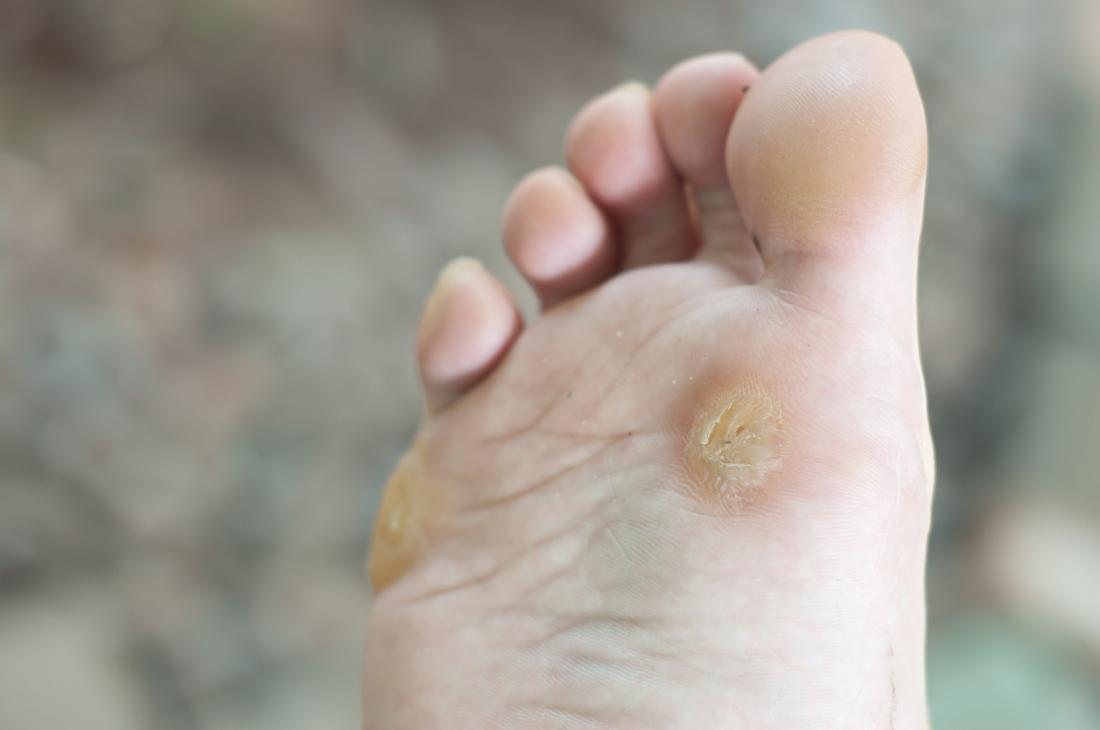 wart on foot growing