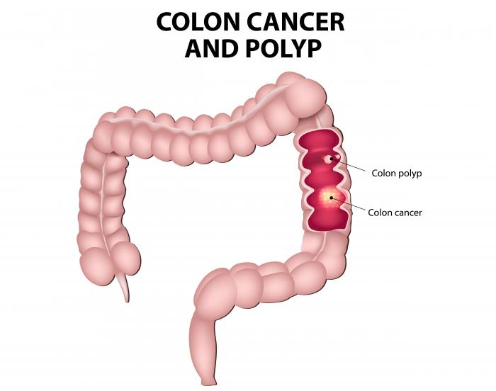 Colorectal cancer: Symptoms, treatment, risk factors, and causes