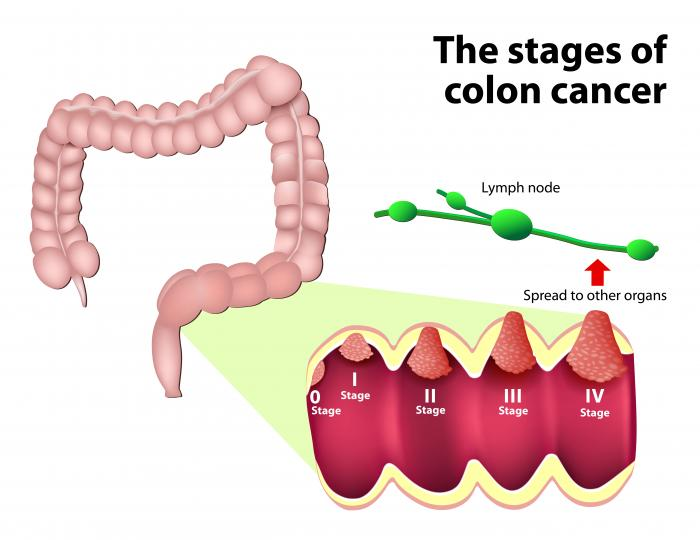 Colorectal Cancer Symptoms Treatment Risk Factors And Causes