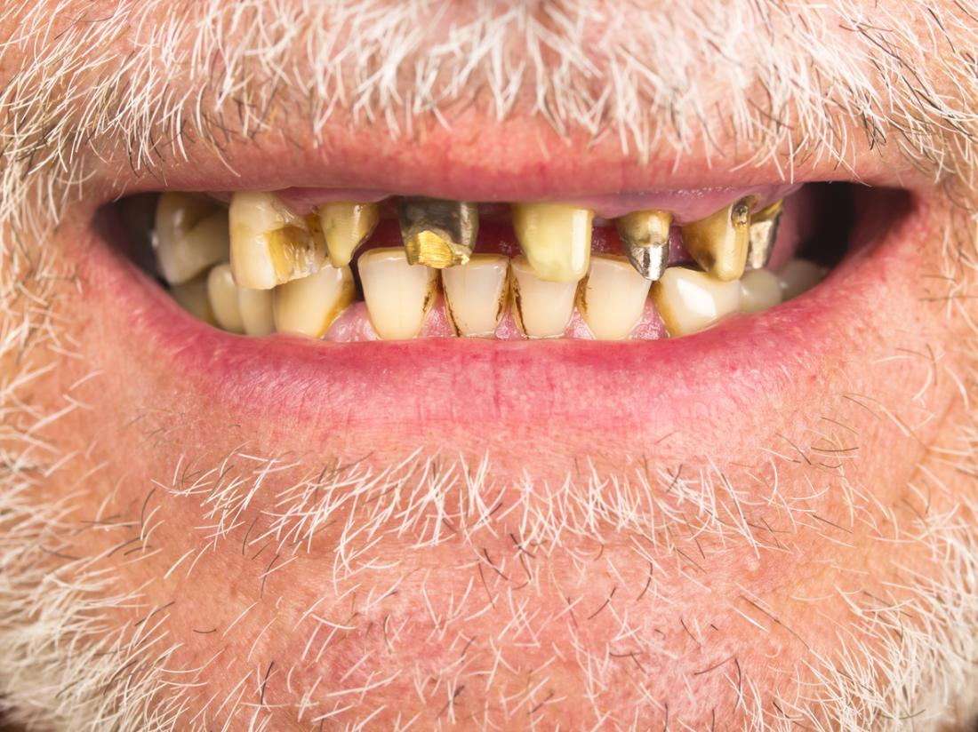 Scurvy Symptoms Causes Treatment And Prevention