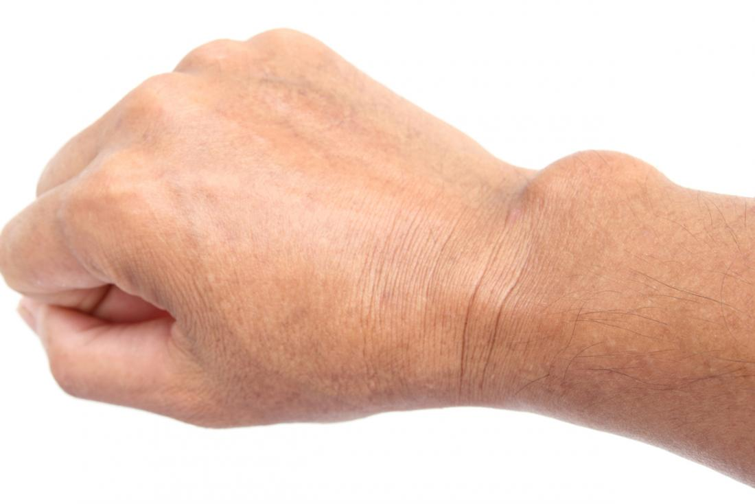 Ganglion cyst: Symptoms, causes, and treatment