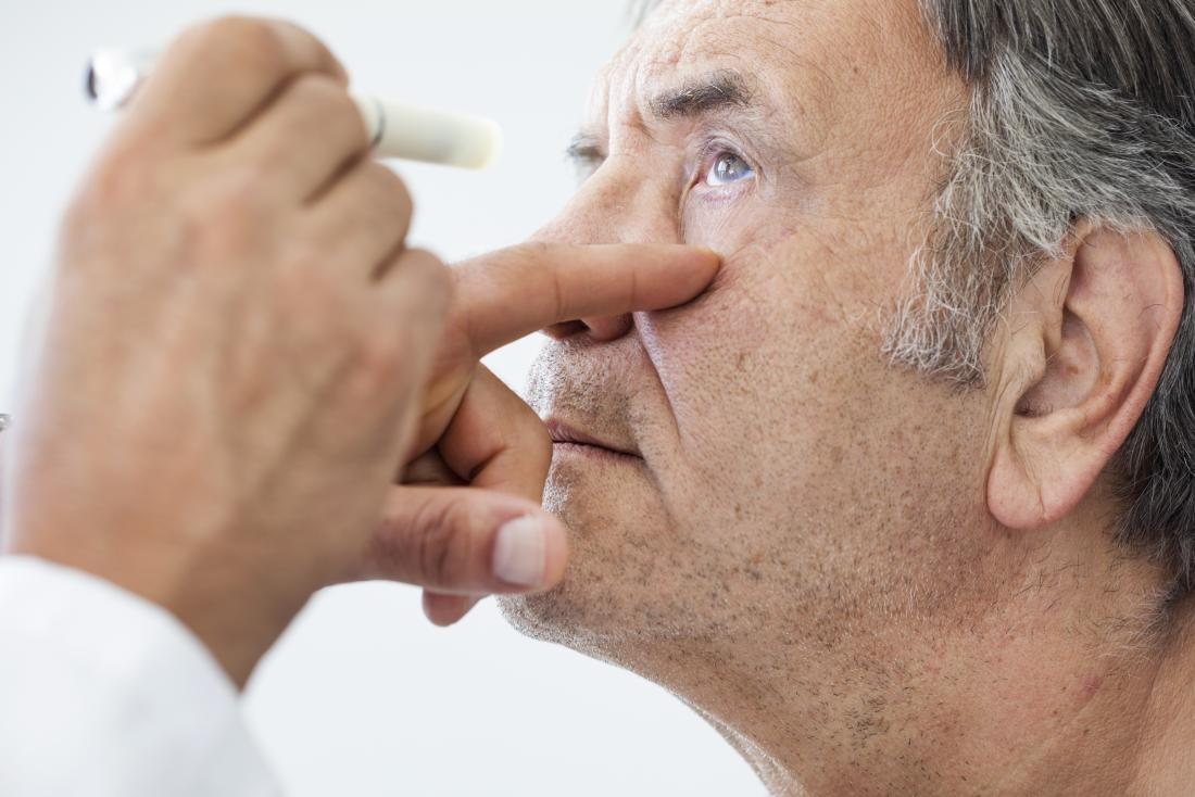 Cataracts Surgery Symptoms And Causes