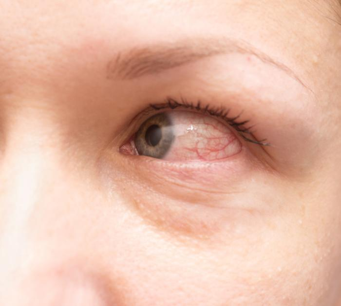 Allergic Conjunctivitis Treatment Symptoms And Causes