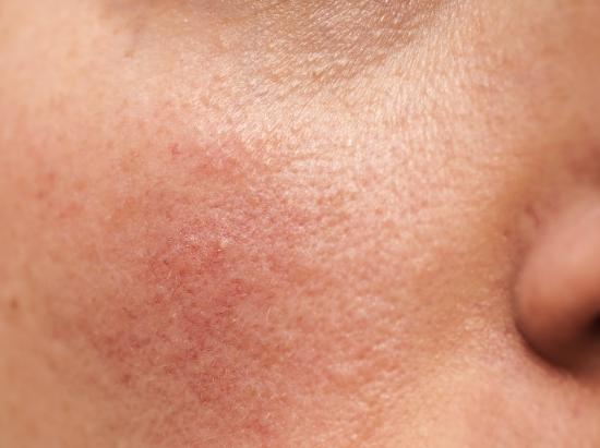 Rosacea: Treatment, types, causes, and symptoms