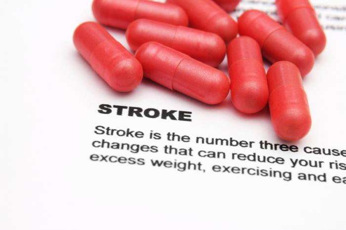 Transient ischemic attack (TIA): Symptoms, causes, and treatment