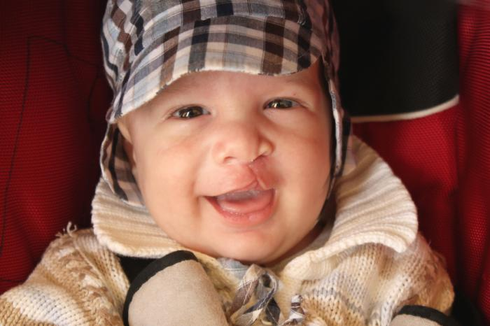 Cleft lip and cleft palate: Causes, treatment, and speech