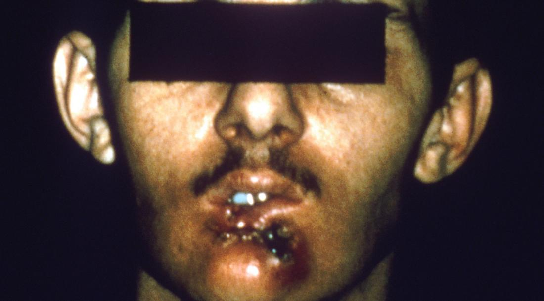 Mouth cancer: Symptoms, diagnosis, and treatment