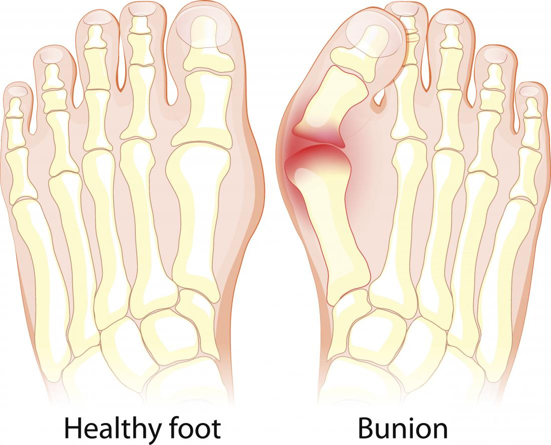 Flat feet: Symptoms, exercises, diagnosis, and treatment