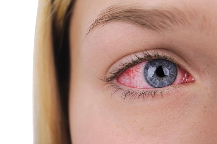 Dry eye: Causes, treatment, and symptoms