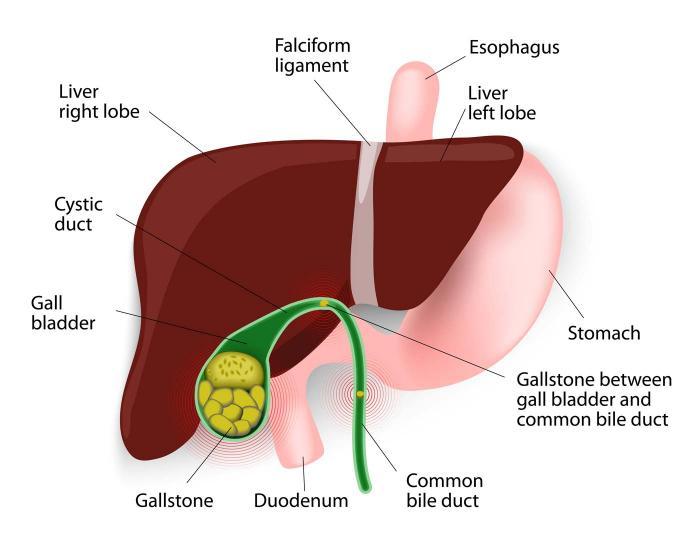 Cholecystitis: Symptoms, causes, diagnosis, and treatment