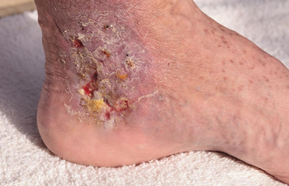 Bed sores: Treatment, stages, and prevention