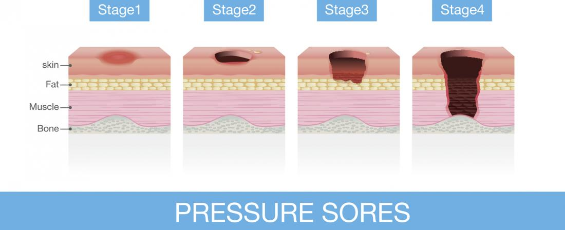 Bedsores Pressure Ulcers Treatments Stages Causes And Pictures