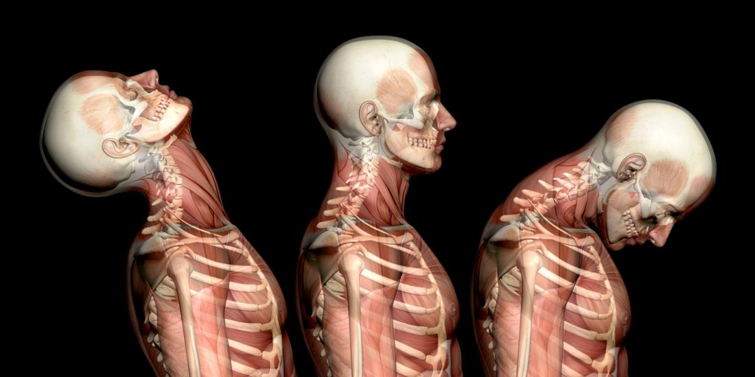 Whiplash: Causes, symptoms, and treatments