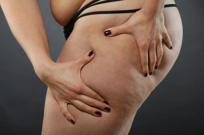 Liposuction: Uses, benefits, and risks