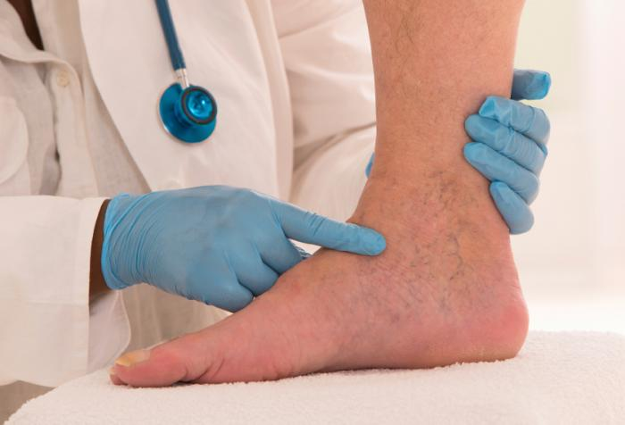 Lymphedema: Symptoms, treatments, and causes