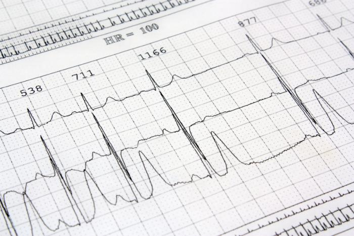 Heart block: Types, causes, symptoms, and risk factors
