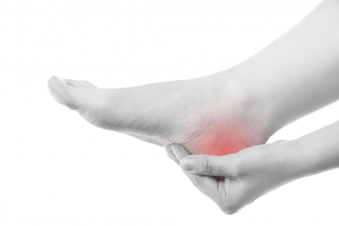 Heel pain: Causes, prevention, and treatments