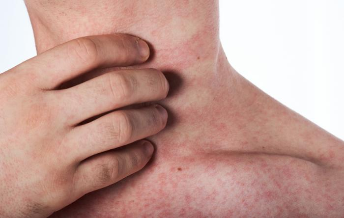Lichen planus: Causes, symptoms, and treatments
