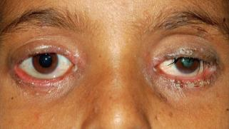 Blepharitis: Treatment, symptoms, pictures, and causes