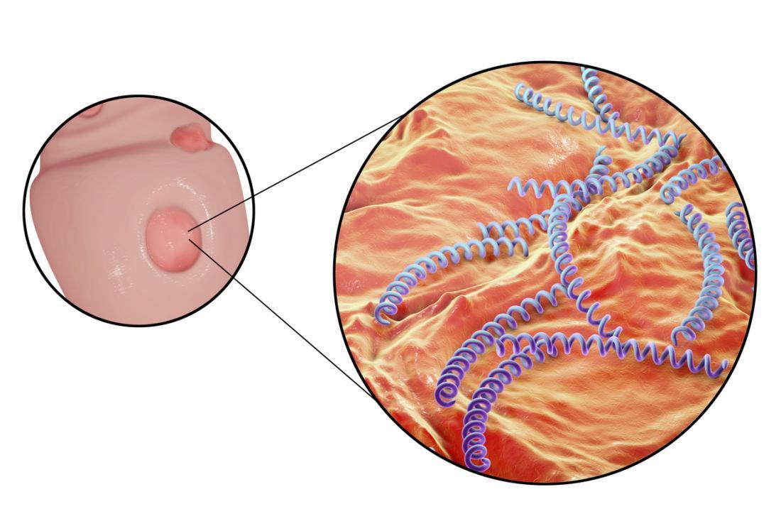 Syphilis: Causes, risk factors, symptoms, and treatment