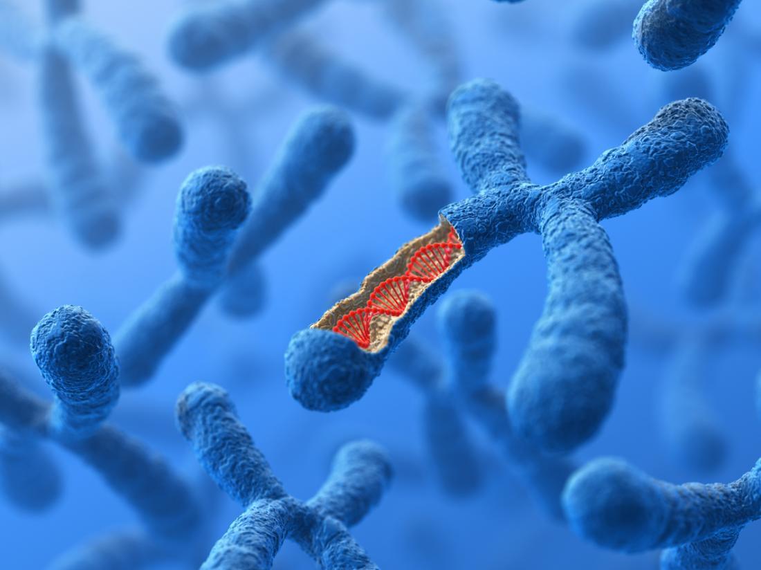 Triple X syndrome: Symptoms, chromosomes, diagnosis, and treatment