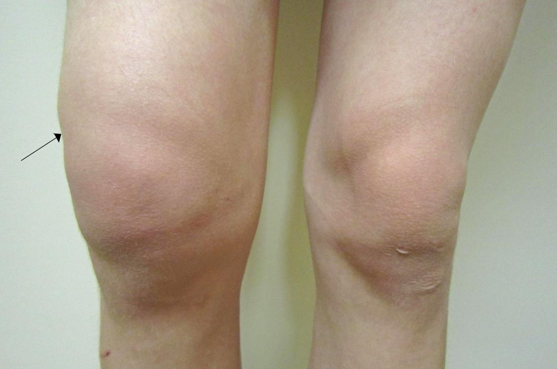 Water On The Knee (Knee Effusion): Treatment, symptoms, and