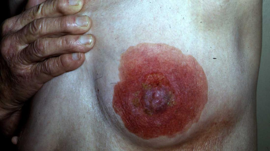 Pagets Disease Of The Breast Causes, Symptoms, And Diagnosis-6137