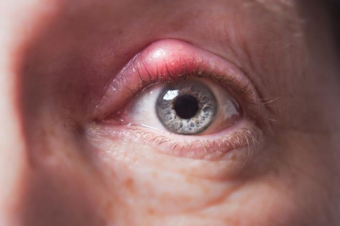 [Woman with internal stye]