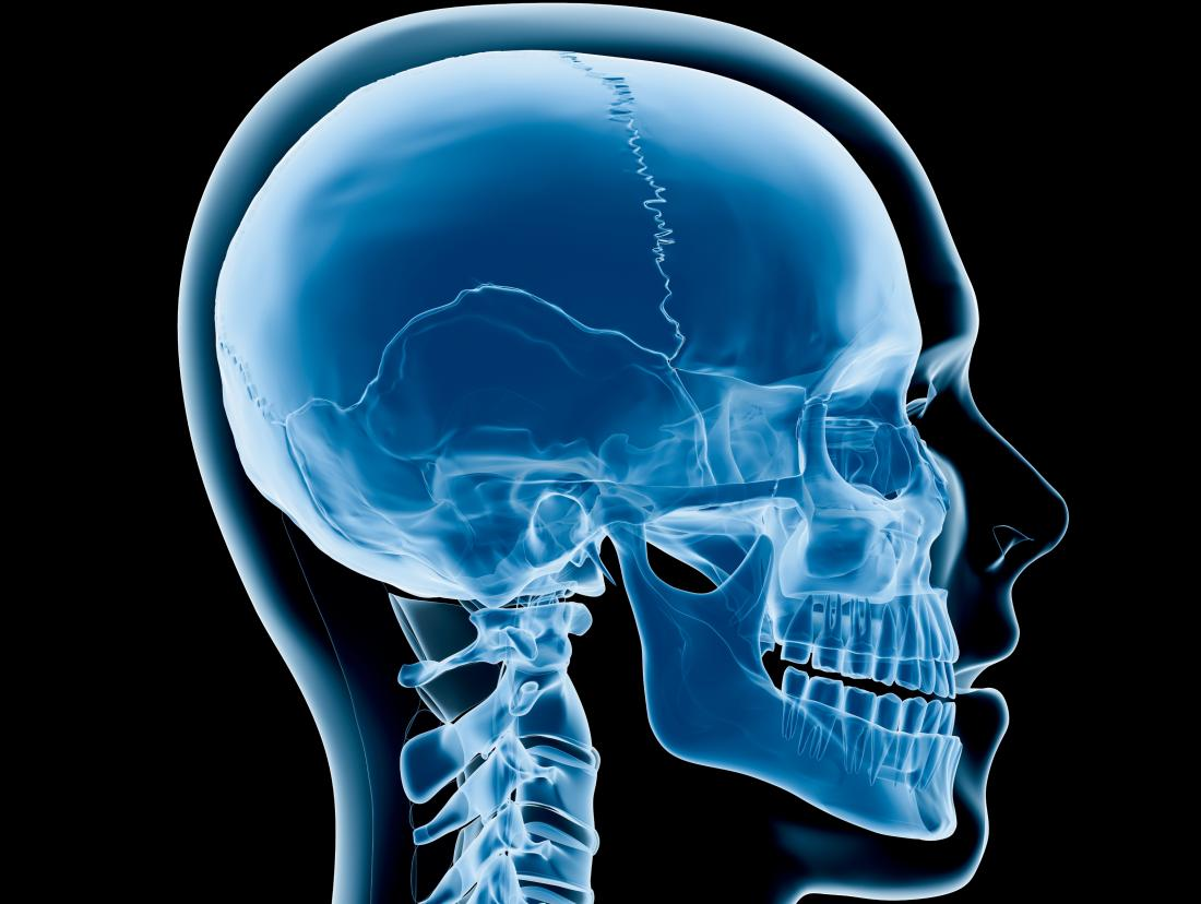 Craniosynostosis: Types, causes, diagnosis, and treatment