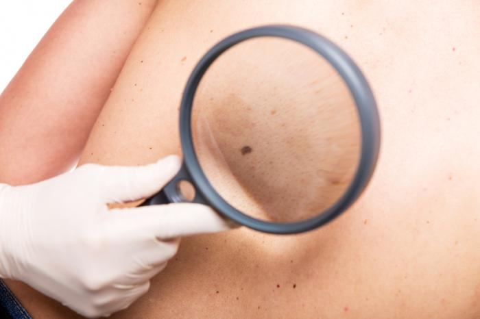 Moles: Types, causes, treatment, and diagnosis