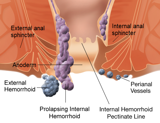 Piles: Symptoms, causes, and treatments