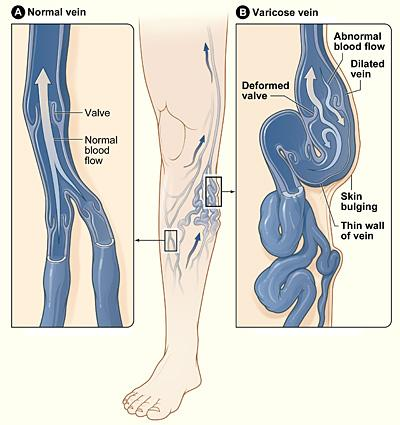 Varicose Veins Causes Treatment Diagnosis And Prevention