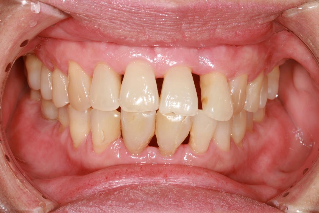 Periodontitis: Treatment, home remedies, and symptoms