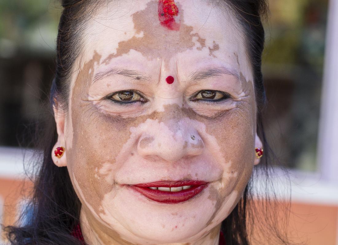 Image result for vitiligo