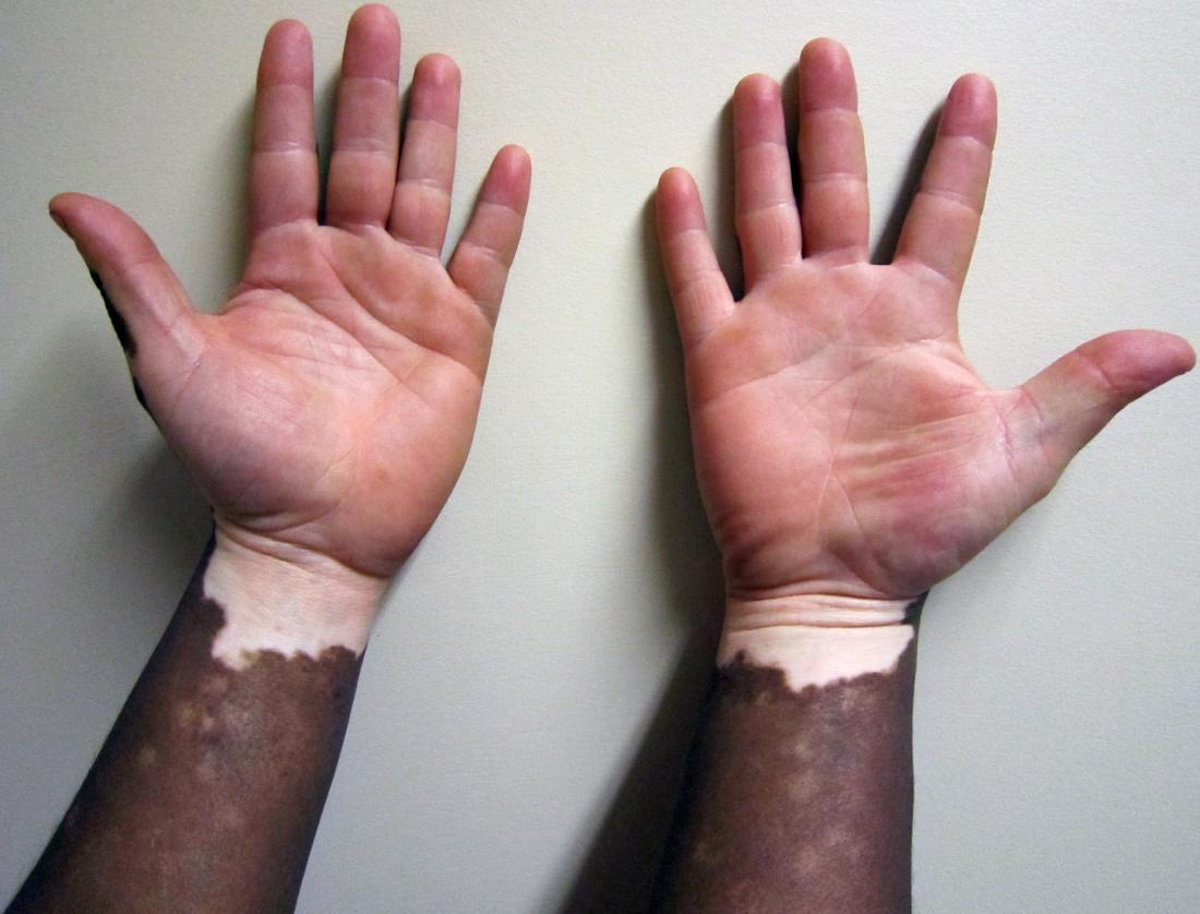 Vitiligo Symptoms Causes And Treatments