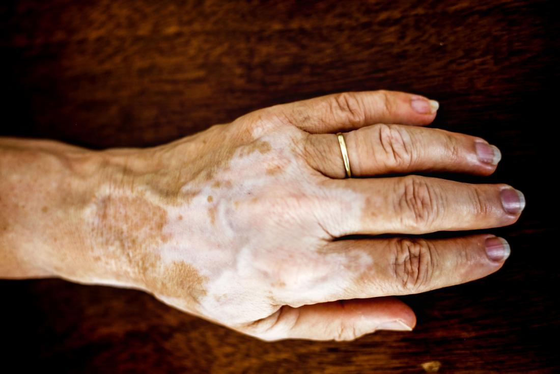 Vitiligo: Symptoms, causes, and treatments