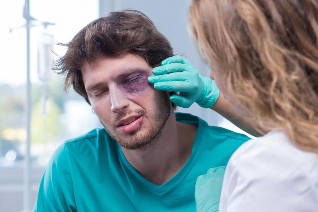 Black eye: Causes, effects, treatment, and prevention