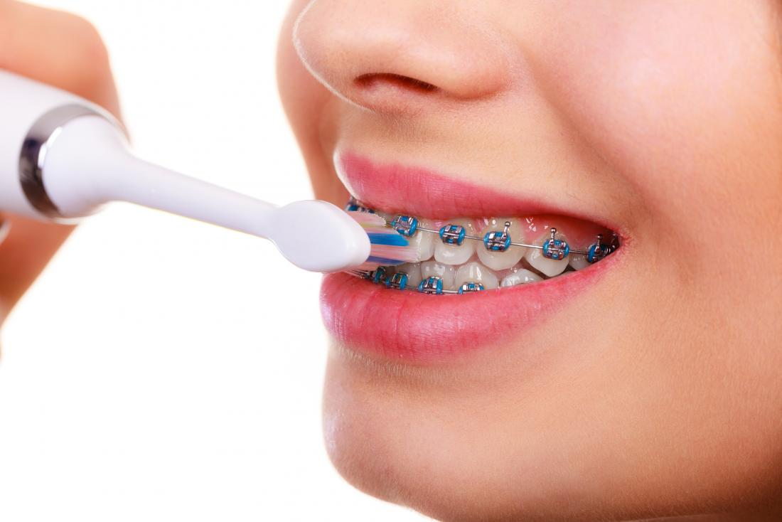 Orthodontics: Maloccclusion, other problems, and starting