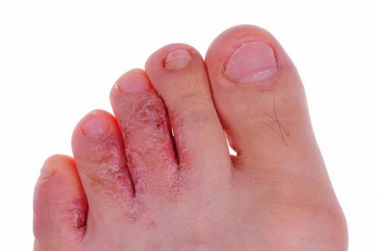Athlete's foot: Symptoms, causes, and treatments