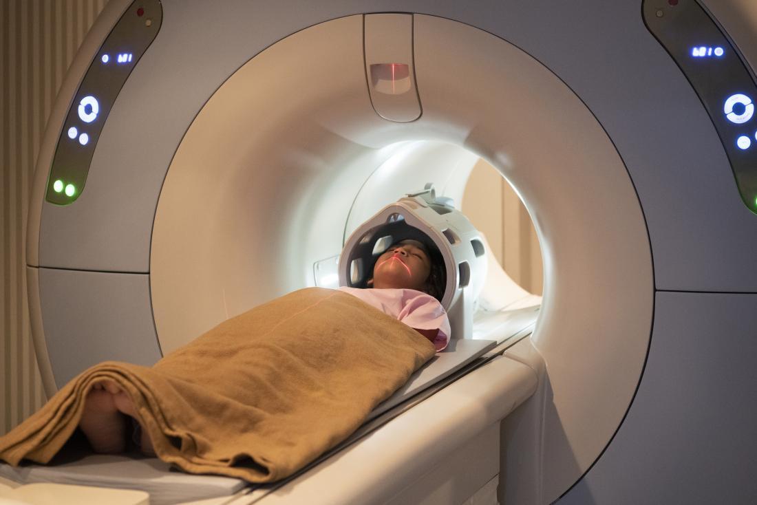 Image result for images showing MRI scans on children