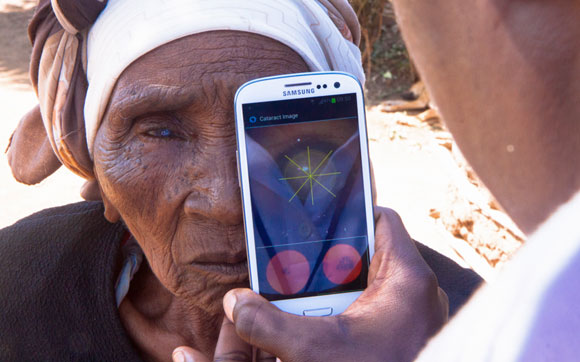 A woman from Nakuru, Kenya, having a cataract scan with the Peek smartphone tool ©Peek